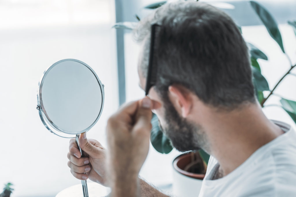 Man checking his hair regrowth or hair loss in mirror