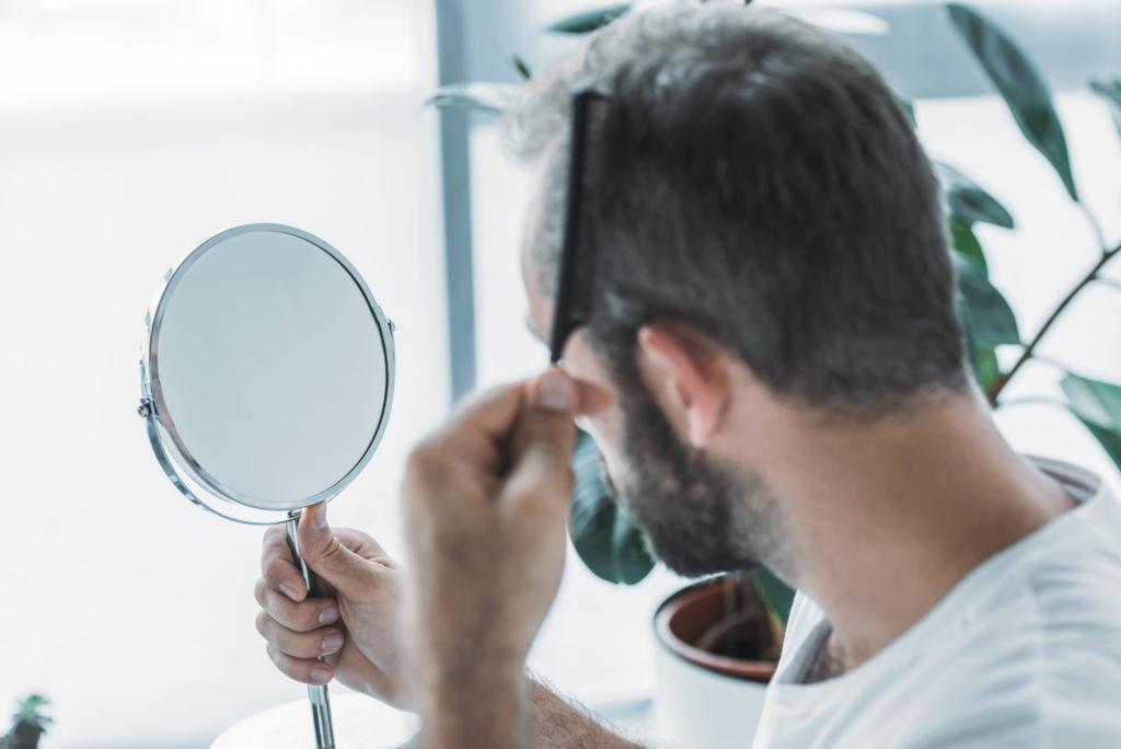 Man checking his hair regrowth or hair loss in mirror