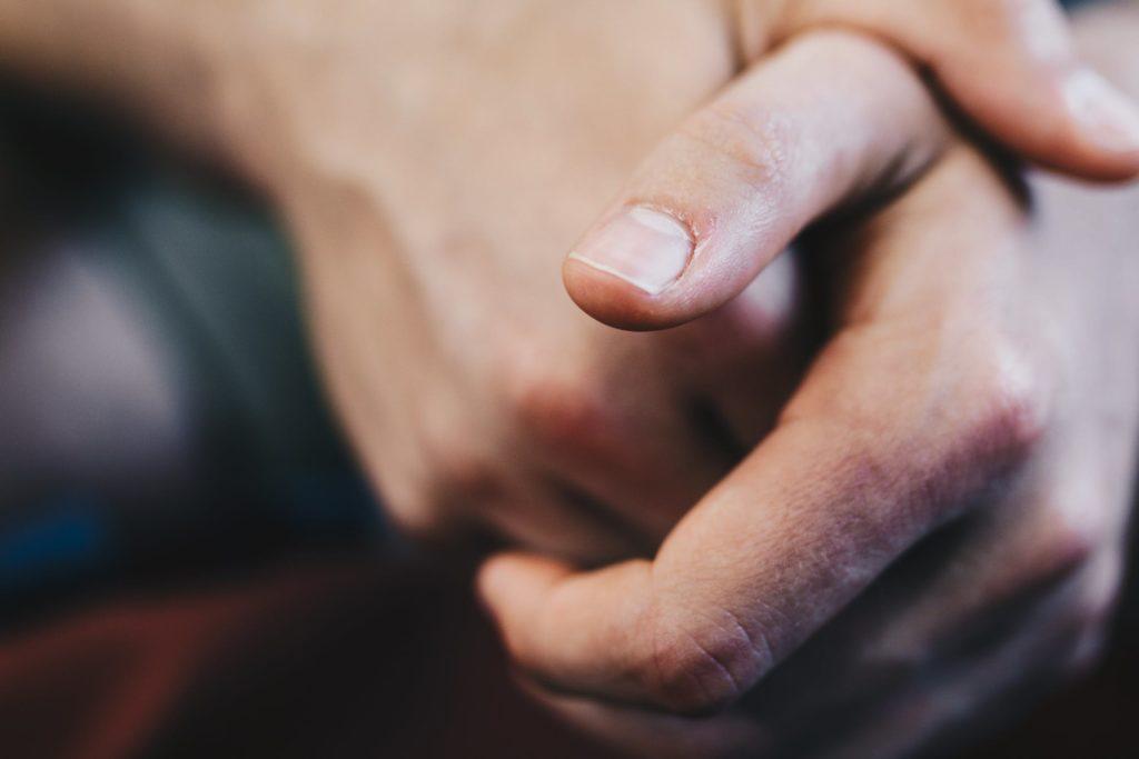 a man's hands folded together