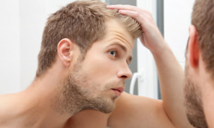 Useful Home Remedies for Baldness That Work