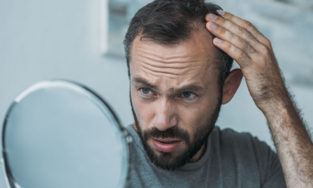 What You Should Know about Vitamin D Deficiency & Hair Loss