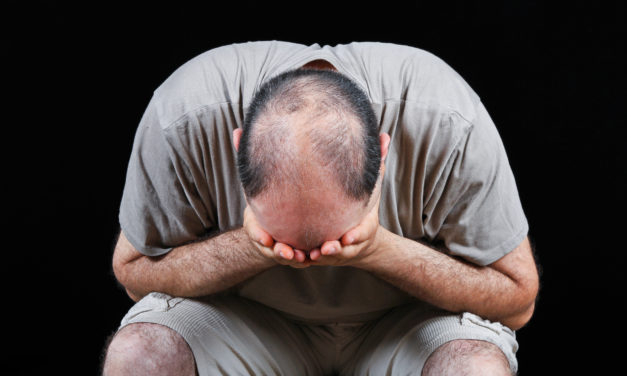Is Hair Loss Psychologically Harming You?