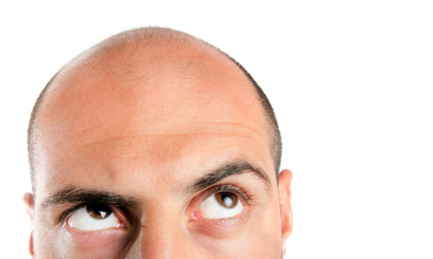 5 Myths about What Causes Hair Loss